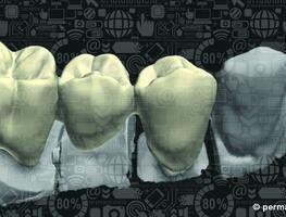 Oralchirurgie