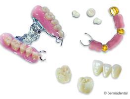 Ästhetische Zahnheilkunde - Komplettanbieter